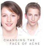 Acne - no thanks!